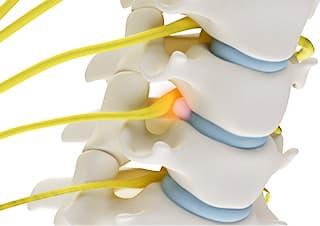 脊髄とは、脳から連続している中枢神経の事で、脊椎の脊髄腔の中を通っています。脊椎を損傷すると、損傷した脊椎以下のレベルで麻痺、知覚障害、感覚障害、運動障害が起きてしまいます。脊髄症型は後遺障害を残す可能性が高いために、「むちうち」のなかでも深刻になることが多いので専門医にしっかりと相談してください。